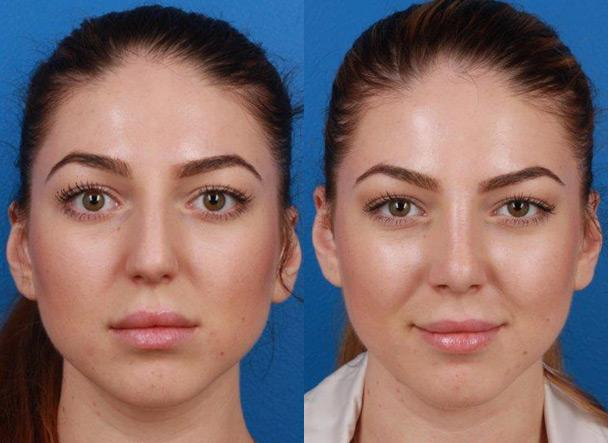patient-11466-rhinoplasty-nosejob-before-after-3