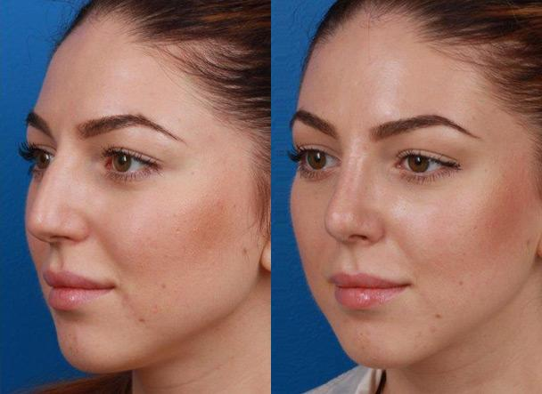 patient-11466-rhinoplasty-nosejob-before-after-4