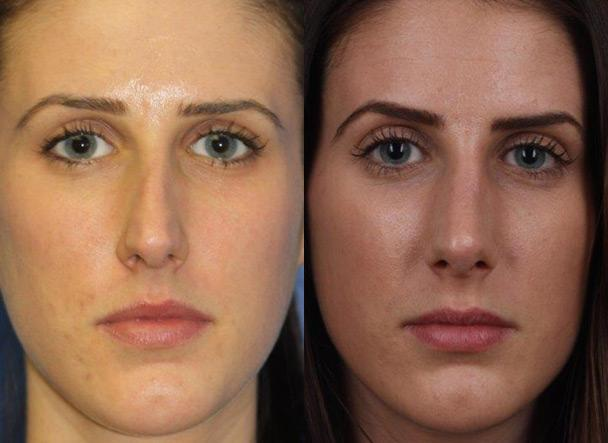 patient-11473-rhinoplasty-nosejob-before-after-6