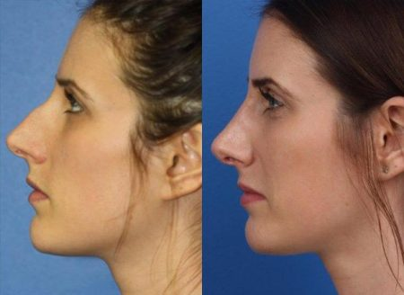 patient-11473-rhinoplasty-nosejob-before-after-7