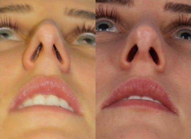 patient-11473-rhinoplasty-nosejob-before-after-8