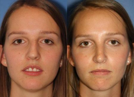 patient-11480-rhinoplasty-nosejob-before-after-5