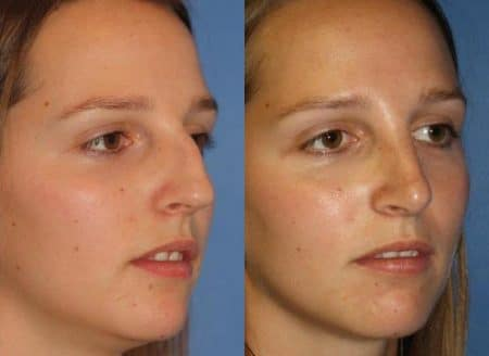 patient-11480-rhinoplasty-nosejob-before-after-6