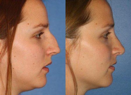 patient-11480-rhinoplasty-nosejob-before-after-7