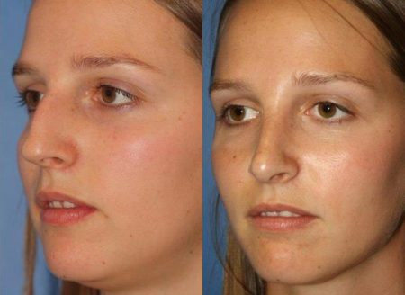 patient-11480-rhinoplasty-nosejob-before-after-8
