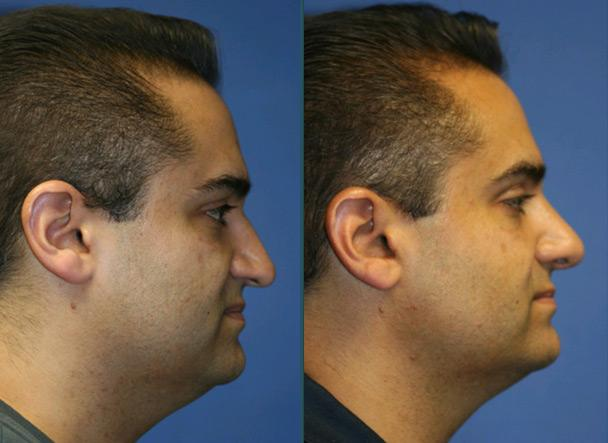 patient-11491-rhinoplasty-nosejob-before-after-1