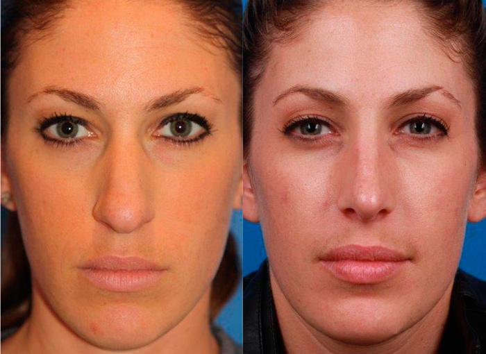 patient-11497-rhinoplasty-nosejob-before-after-3