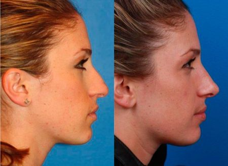 patient-11497-rhinoplasty-nosejob-before-after-4