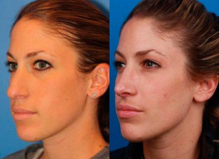 patient-11497-rhinoplasty-nosejob-before-after-5