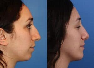 Choosing Right Nose Shape Rhinoplasty New York
