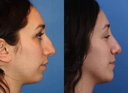 patient-11516-rhinoplasty-nosejob-before-after-1