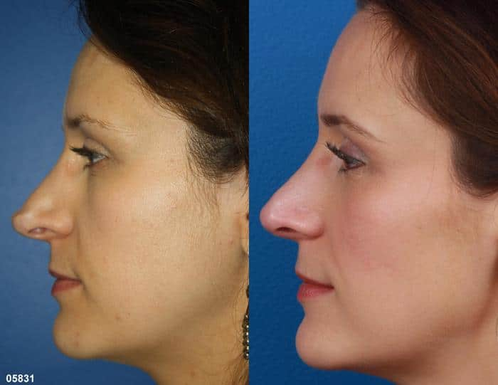 patient-11519-rhinoplasty-nosejob-before-after-10