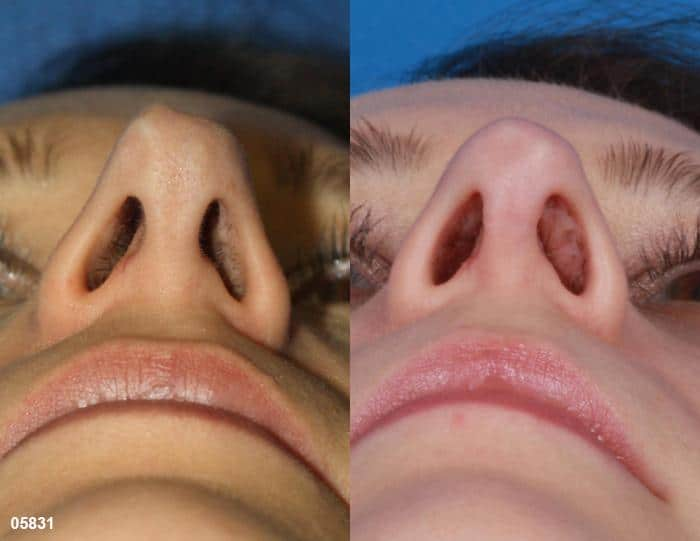patient-11519-rhinoplasty-nosejob-before-after-11