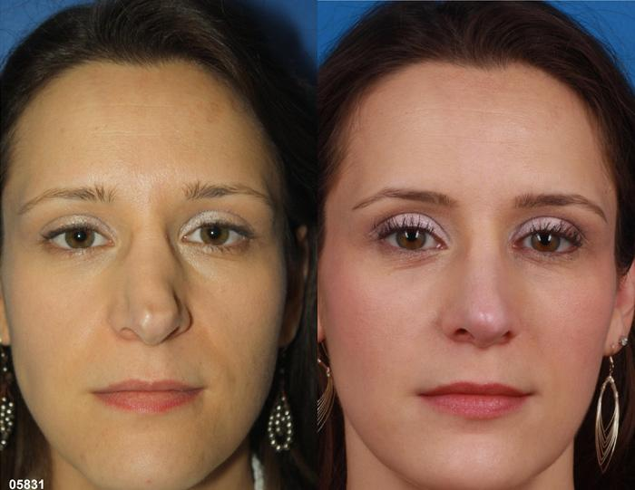 patient-11519-rhinoplasty-nosejob-before-after-6