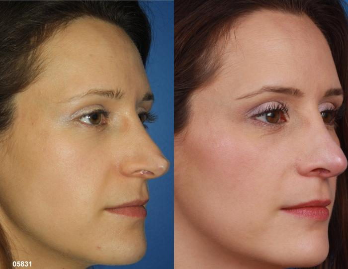 patient-11519-rhinoplasty-nosejob-before-after-7