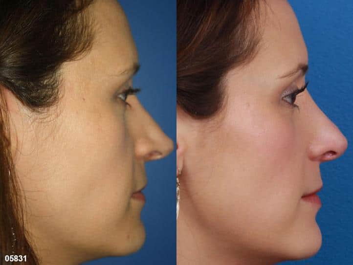 patient-11519-rhinoplasty-nosejob-before-after-8