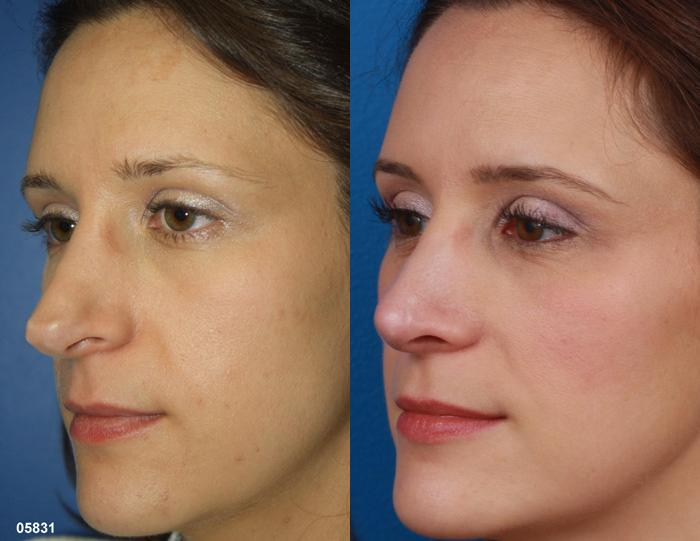 patient-11519-rhinoplasty-nosejob-before-after-9