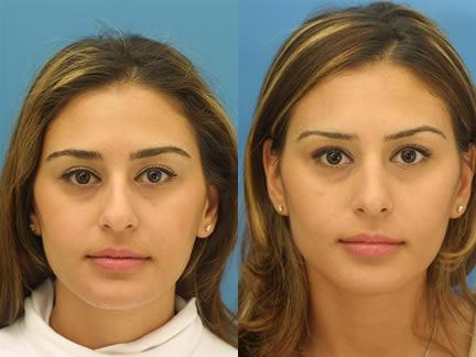 patient-11532-rhinoplasty-nosejob-before-after-3