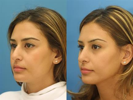 patient-11532-rhinoplasty-nosejob-before-after-4