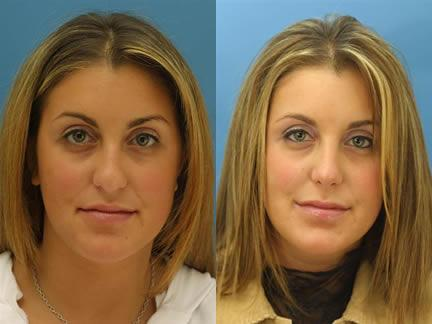 patient-11539-rhinoplasty-nosejob-before-after-5