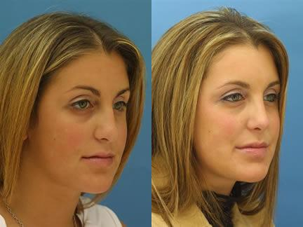 patient-11539-rhinoplasty-nosejob-before-after-6
