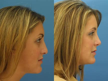 patient-11539-rhinoplasty-nosejob-before-after-7