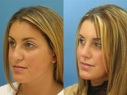 patient-11539-rhinoplasty-nosejob-before-after-8
