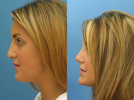 patient-11539-rhinoplasty-nosejob-before-after-9