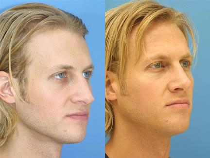 patient-11550-rhinoplasty-nosejob-before-after-2