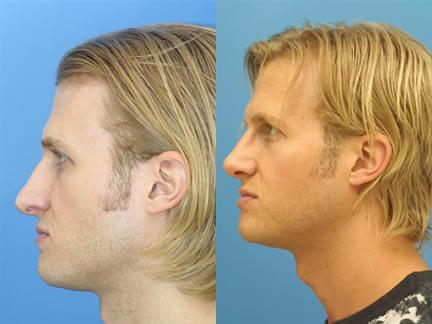 patient-11550-rhinoplasty-nosejob-before-after-3
