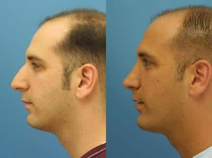 patient-11555-rhinoplasty-nosejob-before-after-1