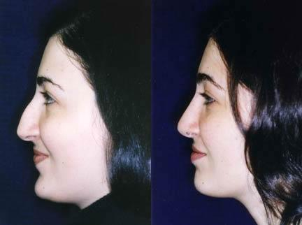 patient-11558-rhinoplasty-nosejob-before-after-2
