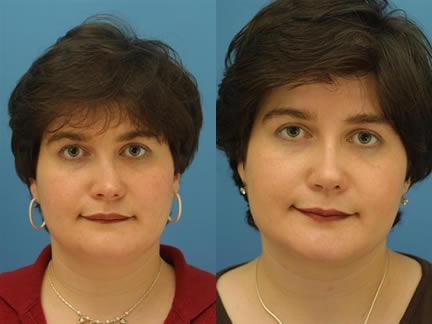 patient-11563-rhinoplasty-nosejob-before-after-1