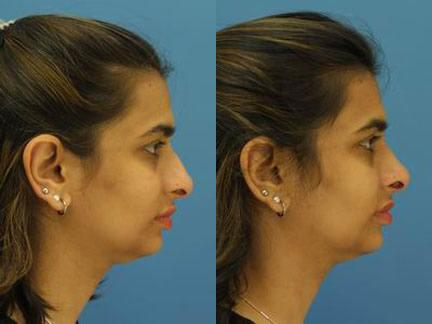 patient-11566-rhinoplasty-nosejob-before-after-1