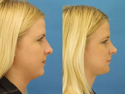 patient-11569-rhinoplasty-nosejob-before-after-1