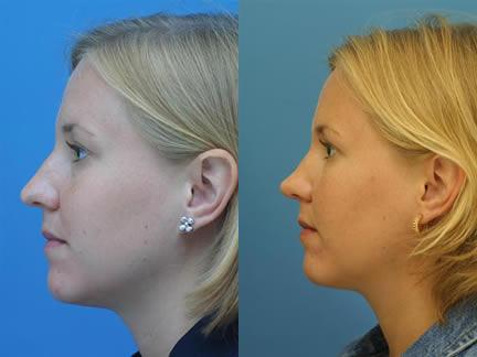 patient-11572-rhinoplasty-nosejob-before-after-1