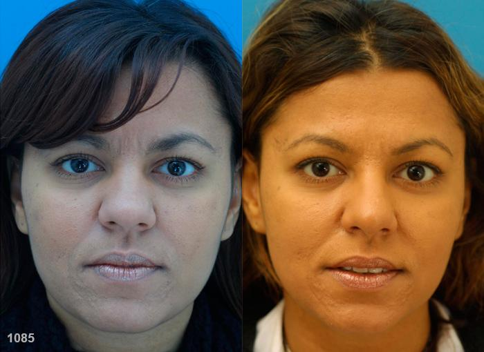 patient-11575-rhinoplasty-nosejob-before-after-1