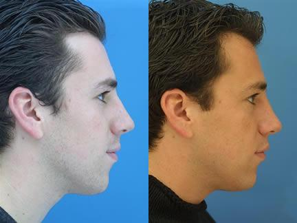 patient-11581-rhinoplasty-nosejob-before-after-1