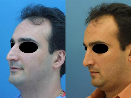 patient-11584-rhinoplasty-nosejob-before-after-1