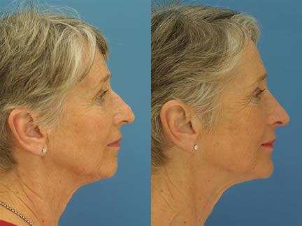 patient-11590-rhinoplasty-nosejob-before-after-1