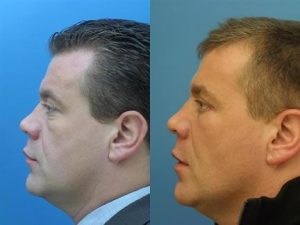 Image comparing a middle aged man before and after rhinoplasty, also known as nose job, resulting in a straighter nose. New York, NY