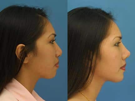 patient-11596-rhinoplasty-nosejob-before-after-1