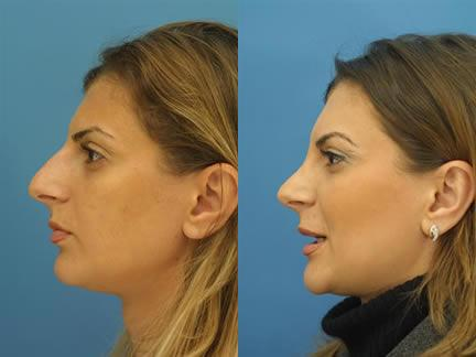 patient-11599-rhinoplasty-nosejob-before-after-1