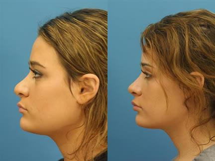 patient-11605-rhinoplasty-nosejob-before-after-1