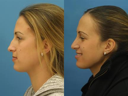 patient-11608-rhinoplasty-nosejob-before-after-1
