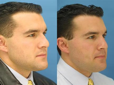 patient-11611-rhinoplasty-nosejob-before-after-1