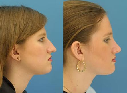 patient-11614-rhinoplasty-nosejob-before-after-1