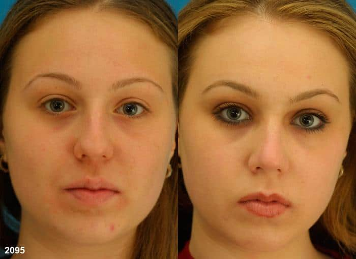 patient-11617-rhinoplasty-nosejob-before-after-3