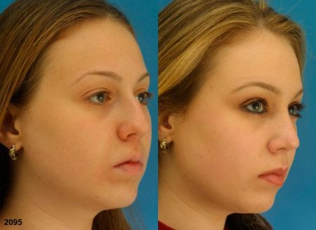 patient-11617-rhinoplasty-nosejob-before-after-4