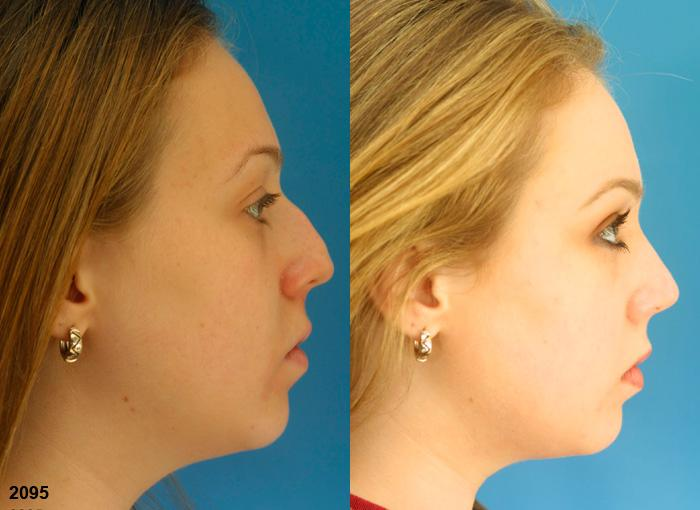 patient-11617-rhinoplasty-nosejob-before-after-5